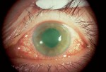 Review of glaucoma management for Belize