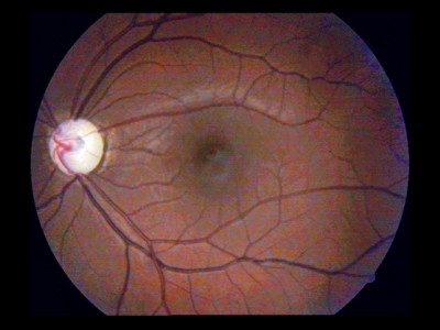 Glaucoma revisited